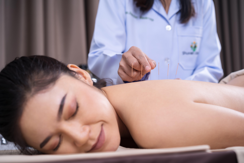 Curso de acupuntura: para quem é e quem pode fazer?